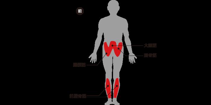 図:MPM